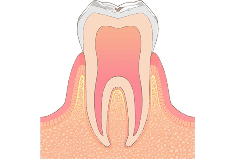 初期虫歯・エナメル質の虫歯