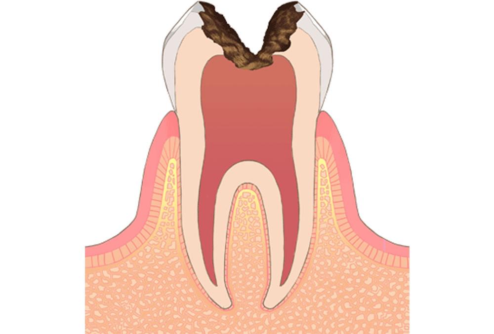 歯の神経まで進行した虫歯