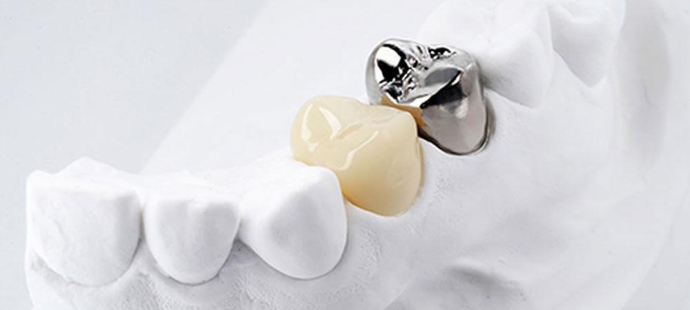保険適用の白いかぶせ物で治療