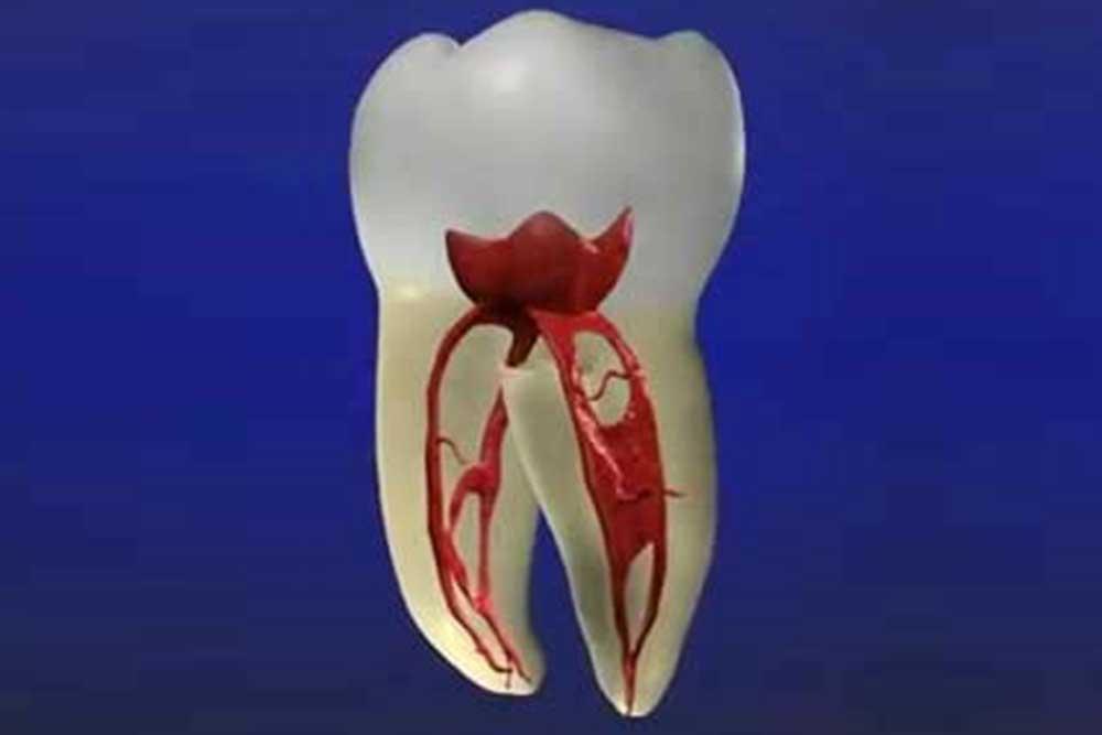 抜歯の回避率向上