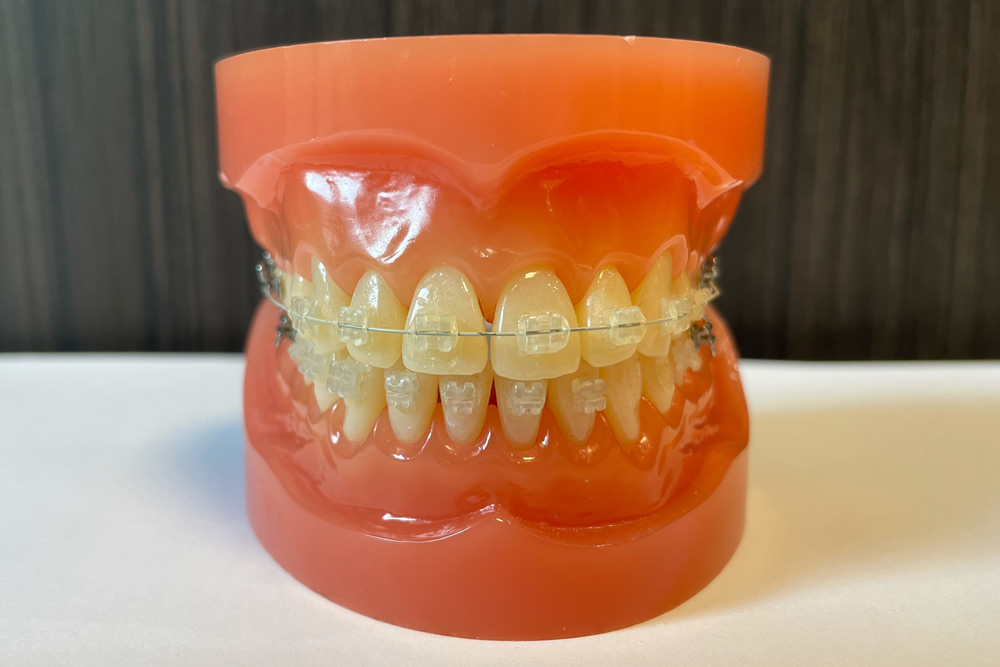 矯正専門歯科医院