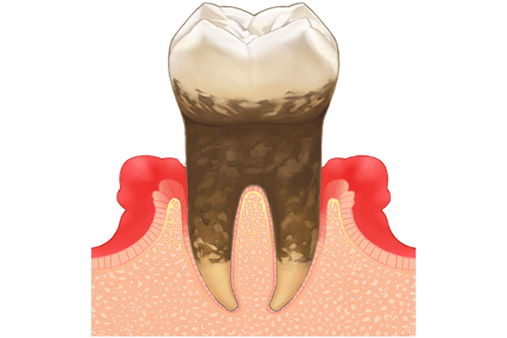歯周病の原因・症状について
